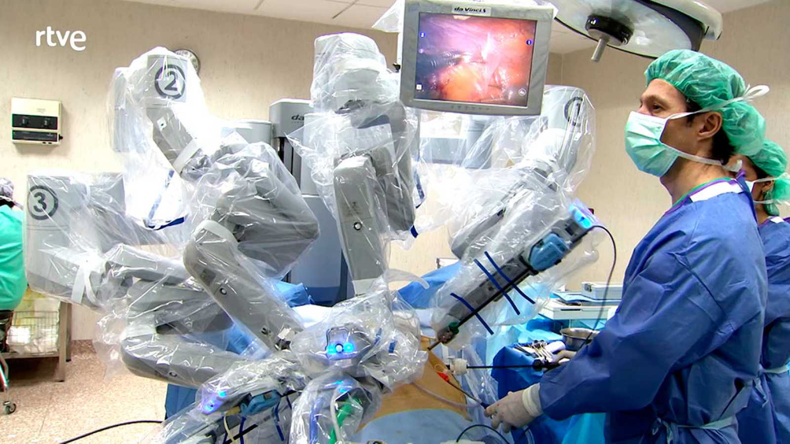 operación de tumor de próstata con robot en