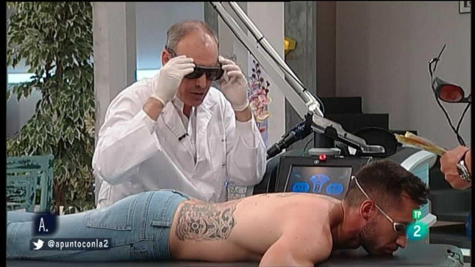 A punto con La 2 - Consumo a punto - Eliminar un tatuaje