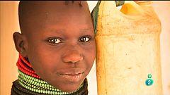 La Aventura del Saber. Cirugía en Turkana