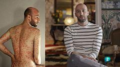 La Ciencia de la Salud - Aceptar la psoriasis