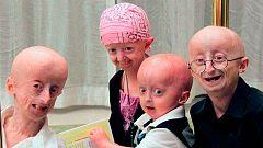 Investigadores españoles consiguen aumentar la esperanza de vida en el síndrome de envejecimiento acelerado