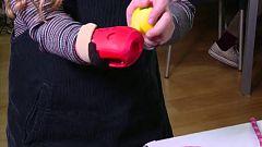 Nuevas prótesis creadas por ordenador permiten la movilidad de muchos niños
