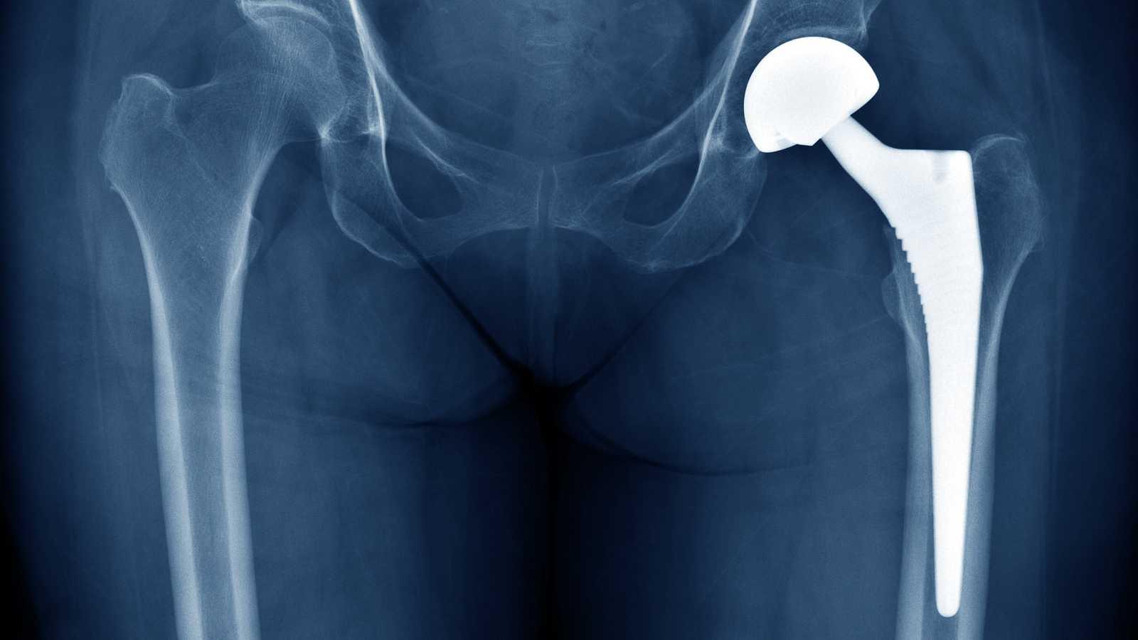 La Audiencia Nacional está investigando a la farmacéutica estadounidense Johnson & Johnson por comercializar presuntamente prótesis de cadera defectuosas que han sido implantadas en varios países, entre ellos España, donde hay 1.471 afectados. Las pr