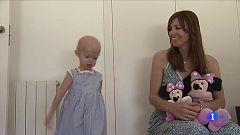 En el mundo hay 120 niños que padecen progeria