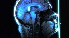 La noche temática - La plasticidad del cerebro. Cambia tu mente