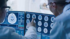 La donación de cerebros, acción clave para la investigación de enfermedades como el alzhéimer