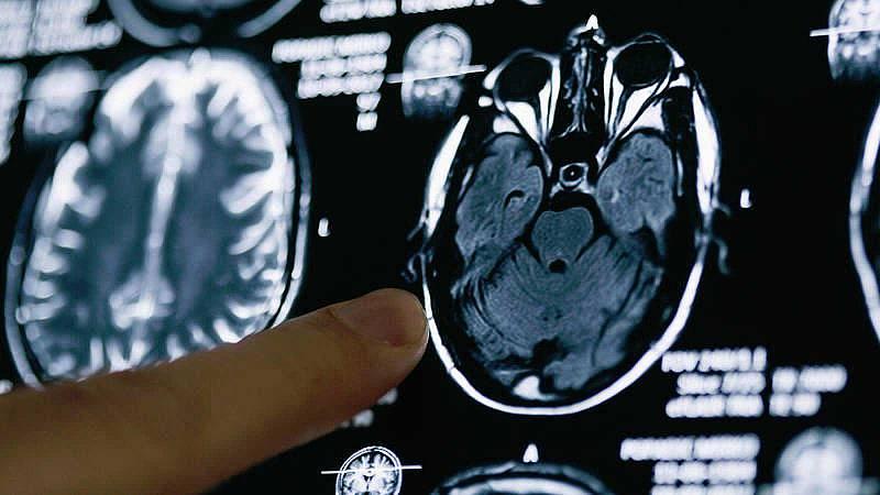 Investigadores españoles demuestran que un anticoagulante oral retrasa la aparición del alzhéimer
