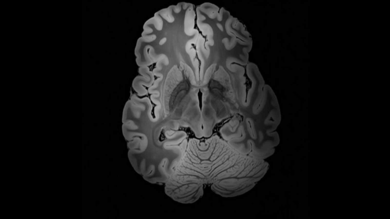 Lab24 - Exclusivamente Alzheimer y Climatizar en el Ártico - ver ahora