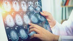 La Mañana - La llave para el alzheimer y el cáncer