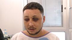 Ingresado en el hospital tras defender a una joven que estaba siendo agredida por su pareja