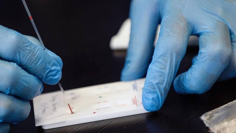 Clínicas y laboratorios ofrecen tests rápidos y serológicos desde 40 euros