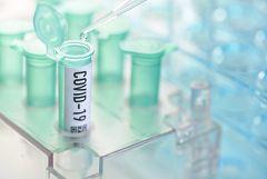 España Directo - Estudio inmunológico para frenar al Covid-19