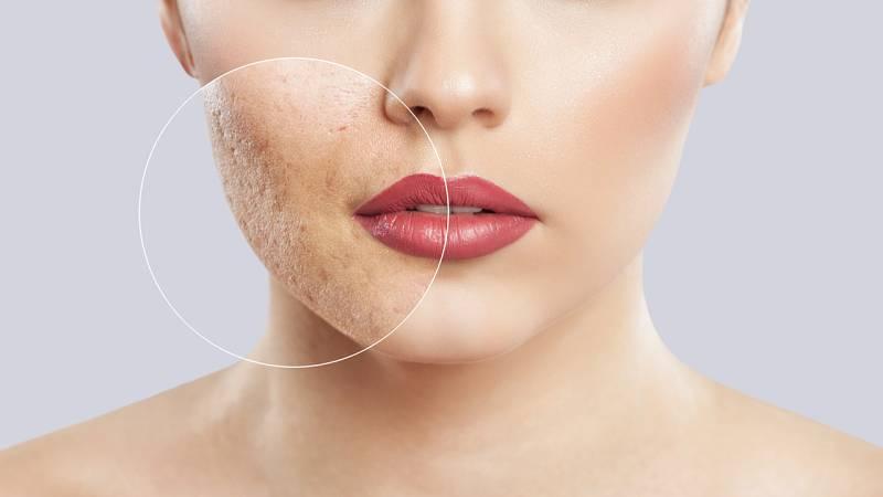Así está afectando el confinamiento a nuestra piel