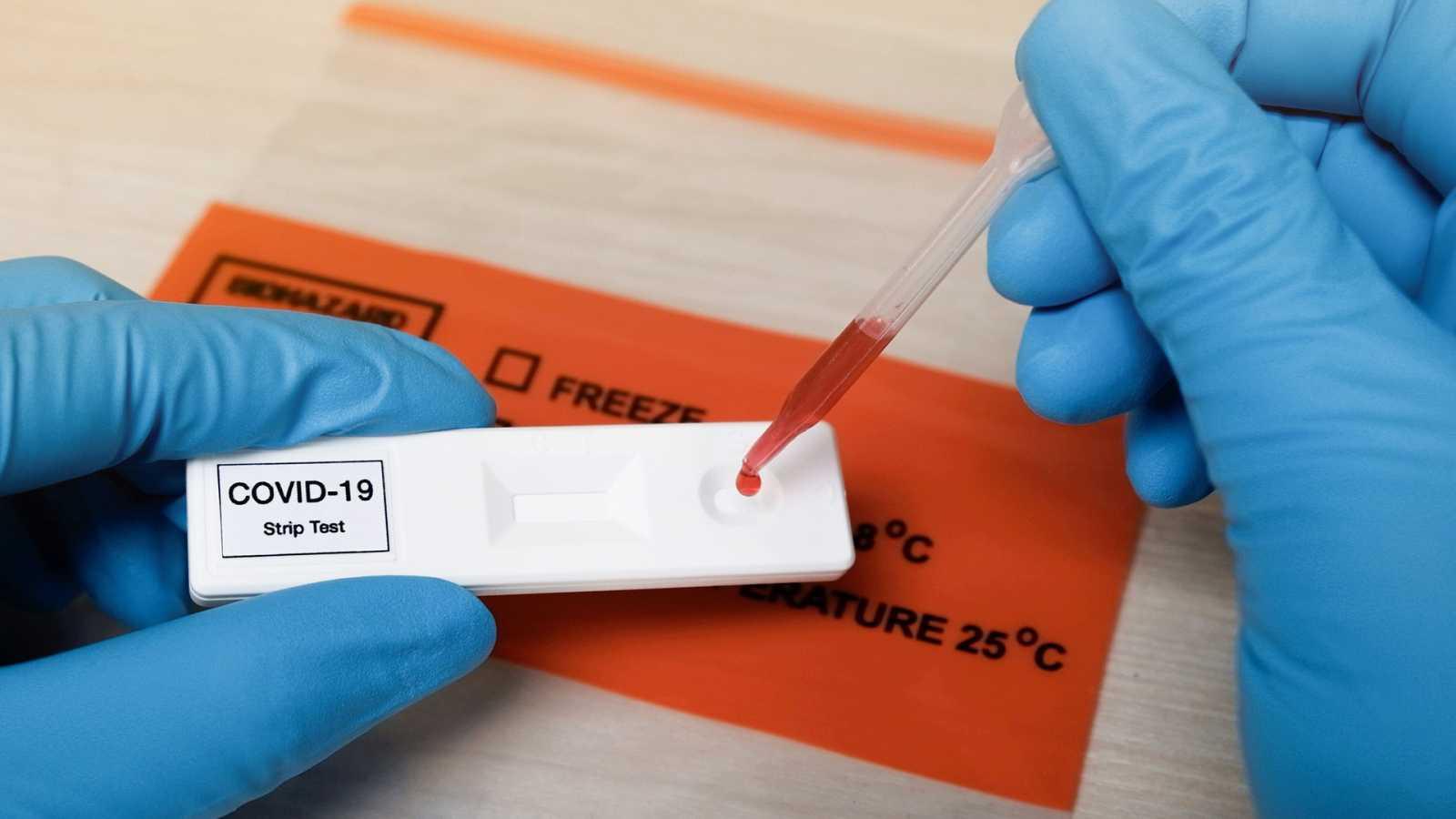 La inmunidad ante el coronavirus abre las puertas del mercado laboral