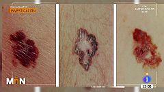 Los daños en la piel por el confinamiento, la mascarilla o el gel hidroalcohólico