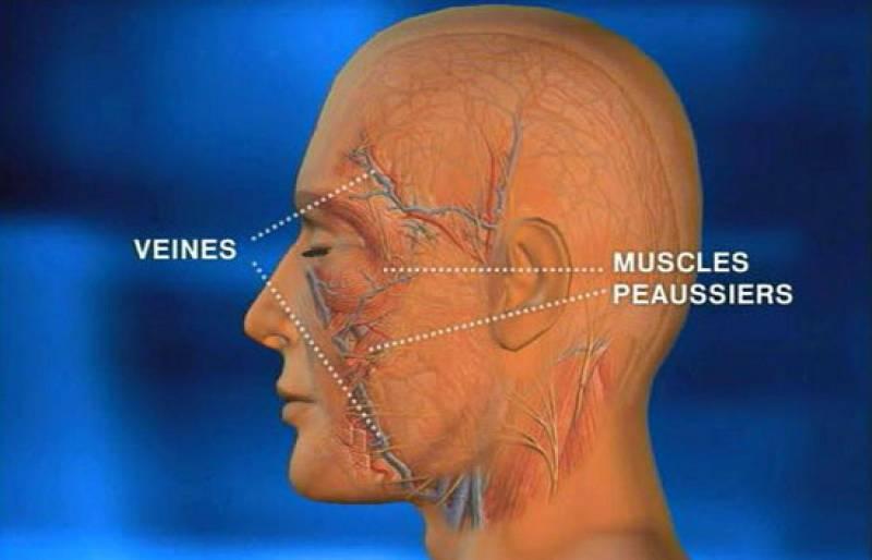 Será el tercer trasplante de cara en España