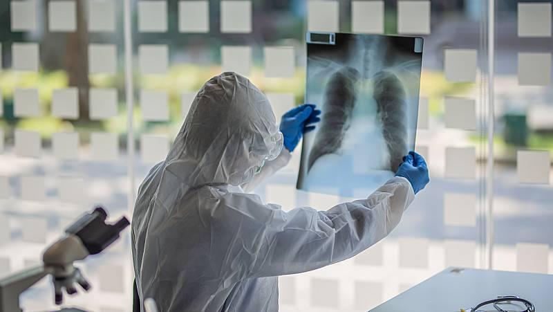 Algunos pacientes continúan sufriendo secuelas de la COVID-19, meses después del contagio