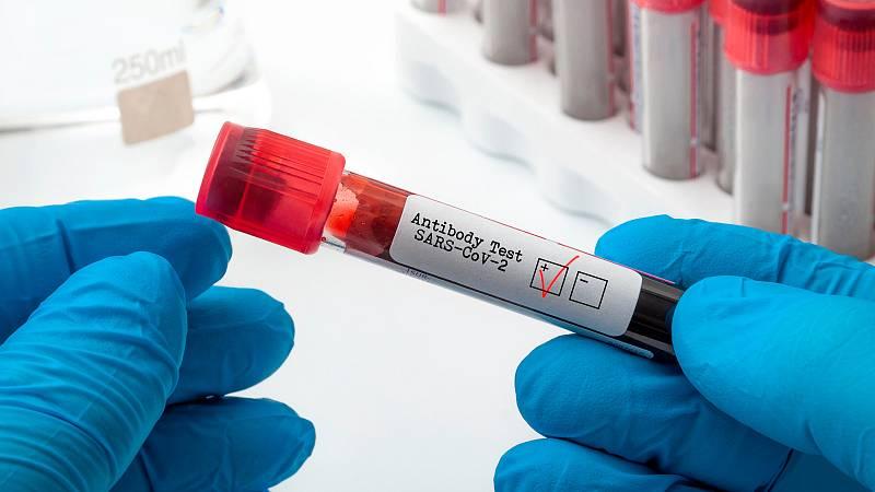 Simón achaca a la aplicación y notificación de los test de antígenos el descenso de casos en Madrid