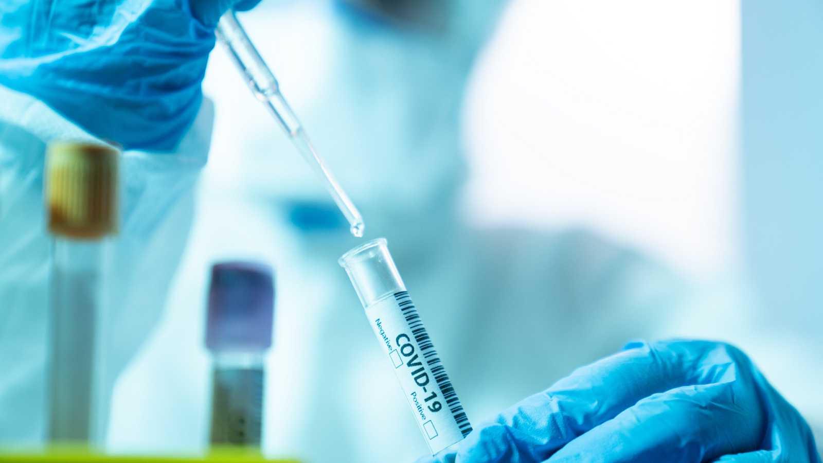 El nuevo test de coronavirus creado en un laboratorio español