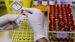 Los anticuerpos contra el coronavirus podrían durar siete meses, según un estudio
