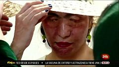 Cada año, millones de mujeres y niñas sufren violencia machista en el mundo