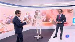 El doctor Villamor explica a TVE la intervención a Marc Márquez