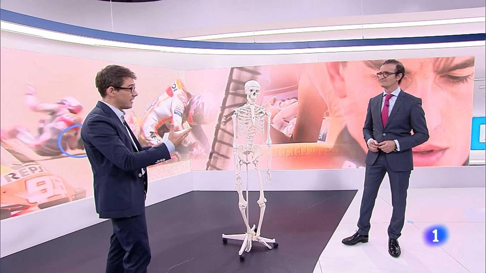 El doctor Villamor nos explica la intervención a Marc Márquez