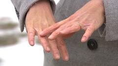 La dermatitis atópica y el frío