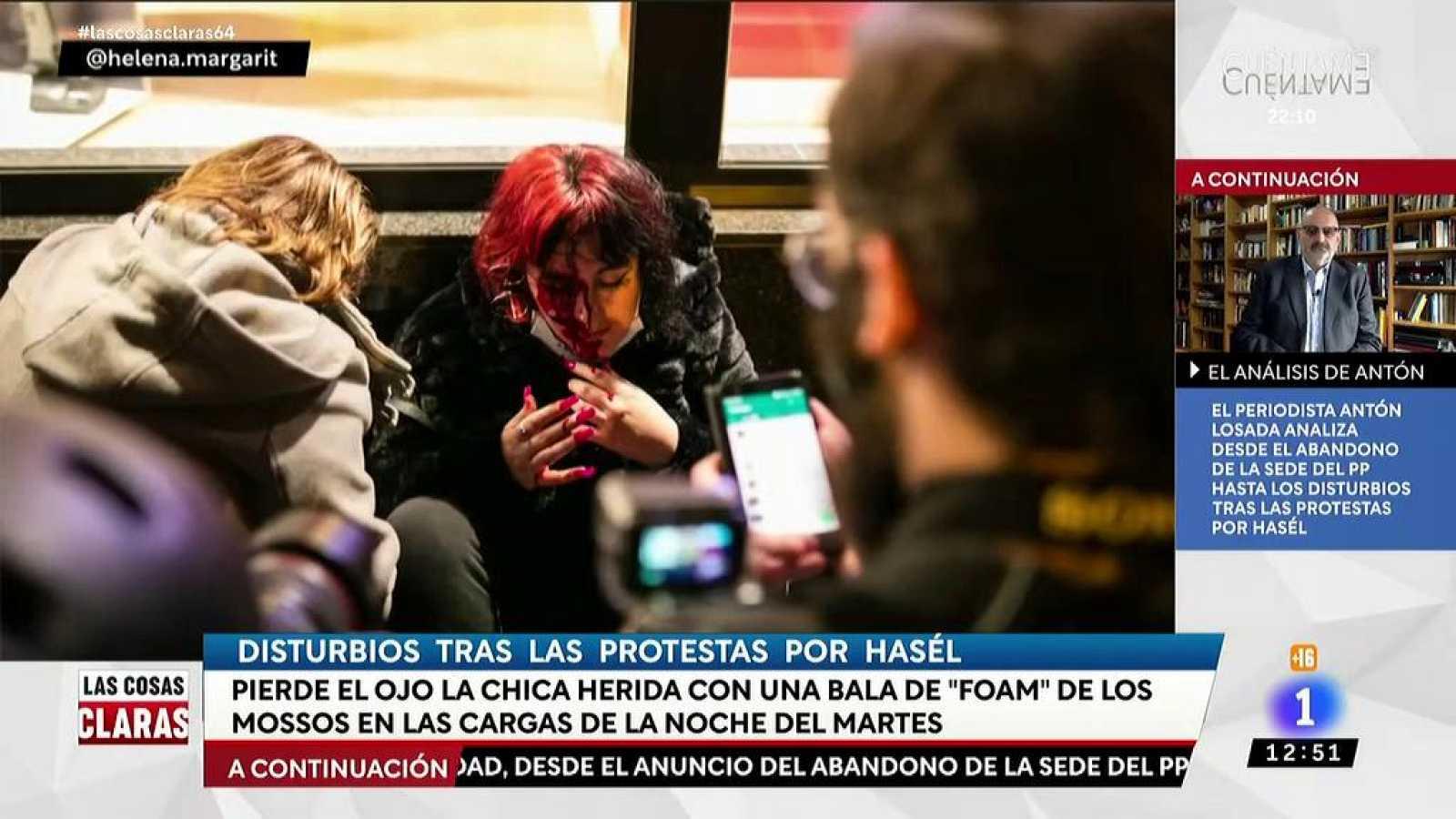 Los Mossos investigarán si un proyectil de foam causó la pérdida del ojo de una manifestante