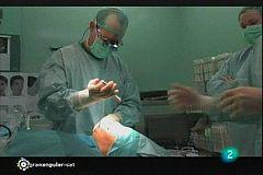 Granangular.cat - El rostre del cirurgià